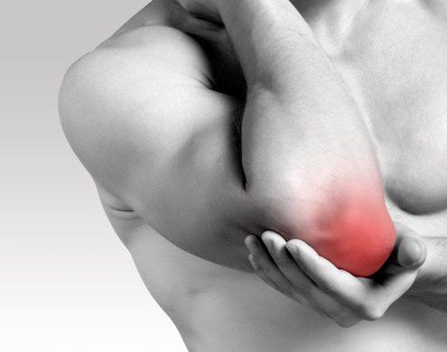 rheumatoid arthritis orsó ujjai