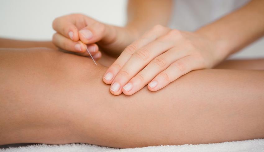 Így segíthet az akupunktúra migrén és ízületi gyulladás esetén - EgészségKalauz