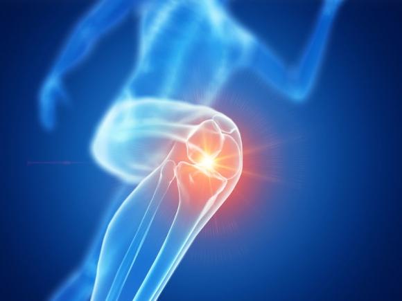 hatásos az artrózis kezelésében lábízület krém