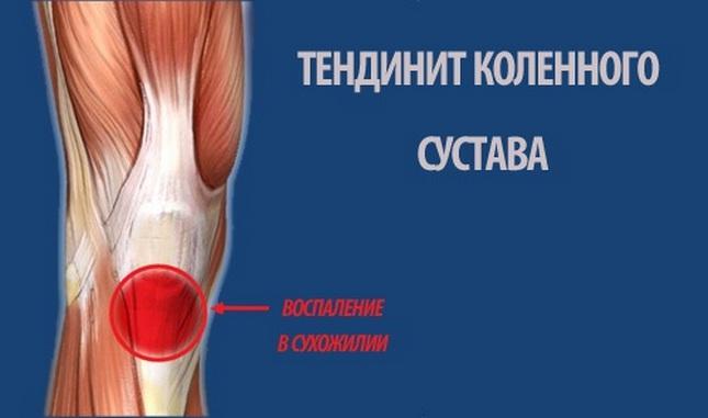 Ízületi gyulladások – Artrózis