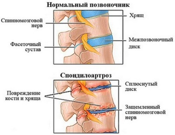 ízületi gyógyszer austin