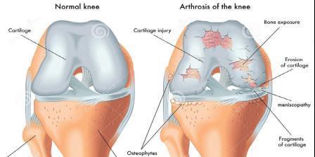 térdszinovitis betegség térdmenisz sérülés következményei
