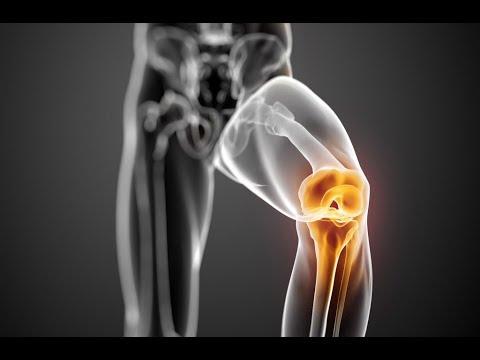posztraumás artritisz térdkezelés vásároljon kondroitint glükozaminnal 1500