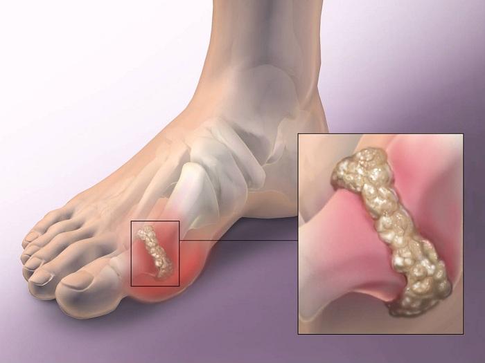 tavaszi fájdalom a lábak ízületeiben