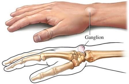miért fáj a gyűrűs ujj ízülete