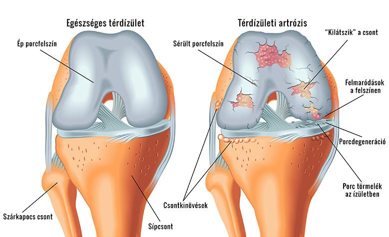 a térd gyógyult izületi gyulladása