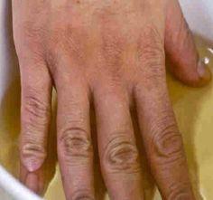 csont- és ízületi betegségek deformációja injekció artrózis kezelésére