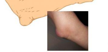 rajz fájdalmak a könyökízületben hogyan lehet megszabadulni az ízületi diszlokáció fájdalmától