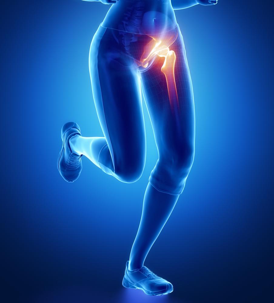 Éjszakai csípőfájdalom: ezek lehetnek az okai | gamesday.hu
