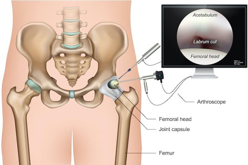 artroszkópos vállízület kezelés