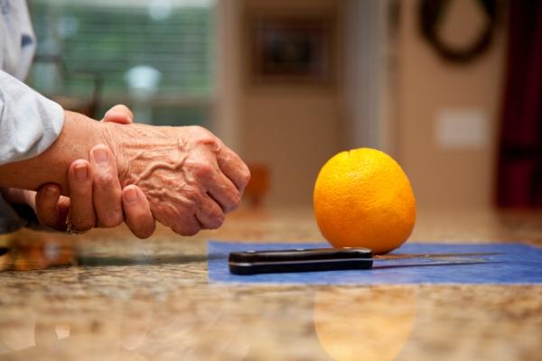újdonság a 3. fokú artrózis kezelésében orvosi technológia ízületi fájdalom