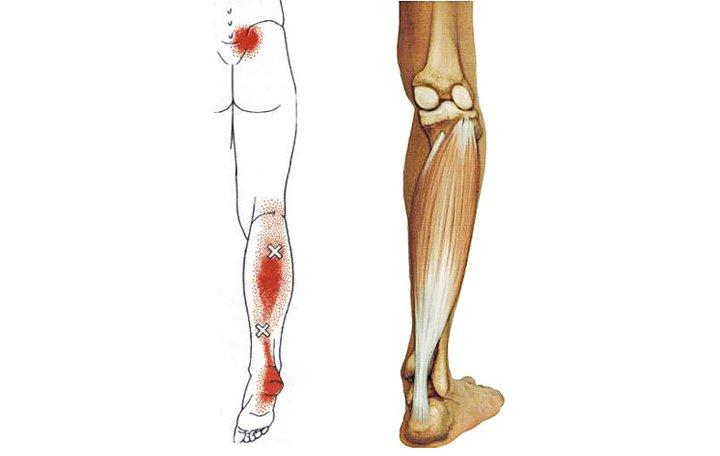 a medence lábainak ízületei fájnak ízületi dysarthrosis kezelés