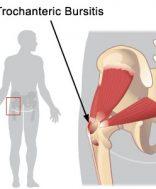 a csípőízületi gyulladás konzervatív kezelése az egész test ízületi betegsége