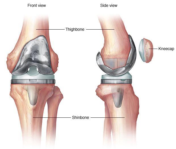 térdízületi kezelés külföldön az artrózis típusai és kezelése