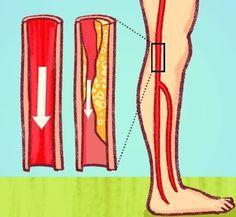 injekciós ízületi kezelés ujjízület károsodása sokk miatt
