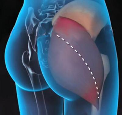 ha a csípőízület fáj, mit kell tenni a térd deformált artrózisa 2 fok