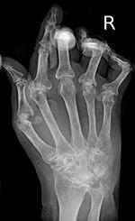 Helminthic kezelés rheumatoid arthritis, Reumatoid artritisz