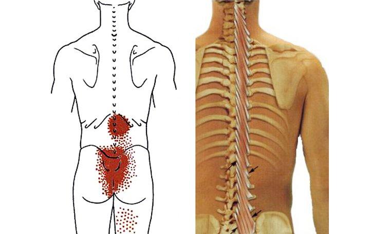 térdfájdalom protézisek után