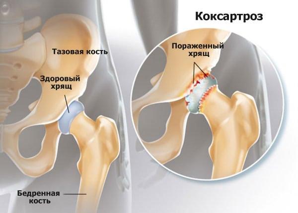 Csípőficam enyhe kezelése - Mozgásszervi megbetegedések