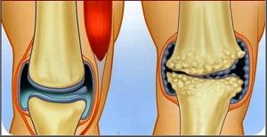 Arthritis és arthrosis: mi a különbség?