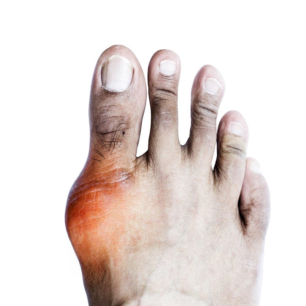 interkostális artrózis kezelés testépítők számára ízületi fájdalmak esetén