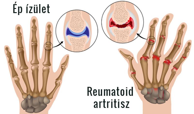 ízületi rheumatoid arthritis kezelése