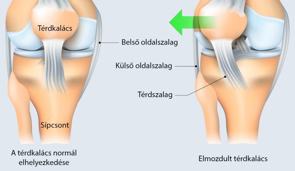 hogyan kezeljük a térdízületi kezdeti stádiumot éles fájdalom a bal csípőízületben