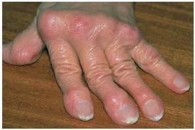 a vállízület periosteumának gyulladása ha a kar ízülete hosszú ideig fáj