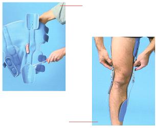 svájci baden ízületi kezelés térdízület összeomlott