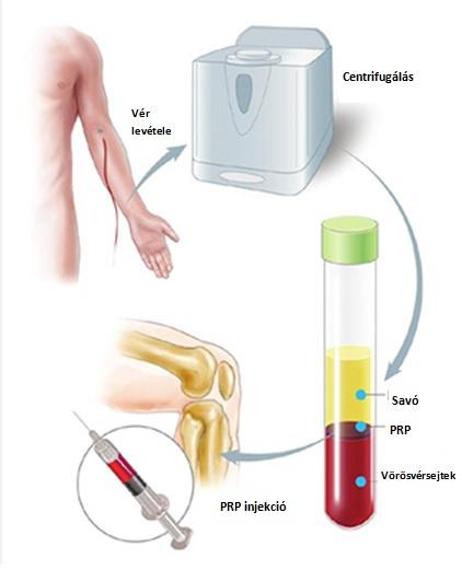 don csípőkezelés közös kezelési periódus