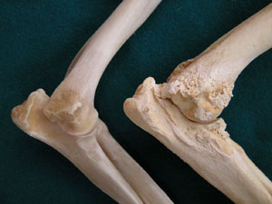impulzus artrózis kezelésére ízületi ízületi gyulladás és ízületi gyulladás kezelése
