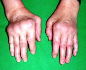 sti ízületi fájdalom közös kezelés makréla