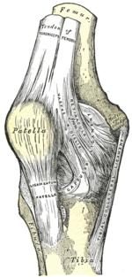 a térdízület 3. fokú artrózisa