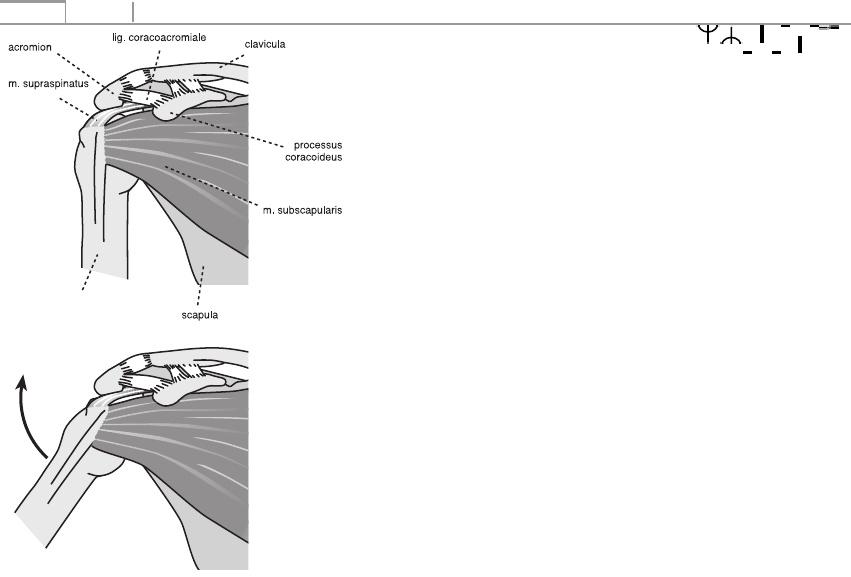 a vállízület ligamentumainak sérülése, hogyan kell kezelni