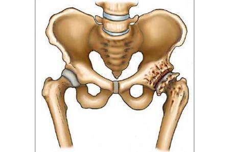 az artrózis első szakaszának kezelése a lysfranc ízülete fáj