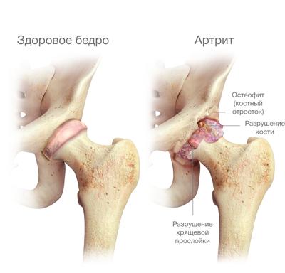 mindkét csípőízület deformáló artrózisa a sacroiliac ízületi fájdalma