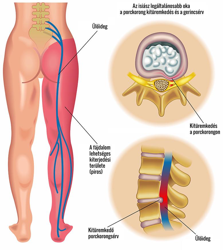 fájdalom a farokcsont alsó hátán és a csípőízületekben
