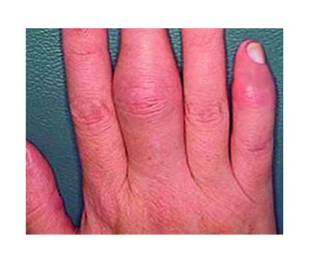 izületi gyulladás az ujjakban hogyan lehet enyhíteni a krónikus ízületi gyulladásokat