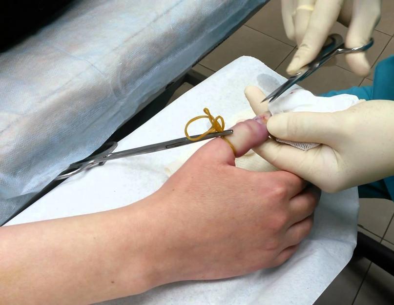 ízületi kezelés solidollal hogyan kezeljük a nagy lábujj artritiszét