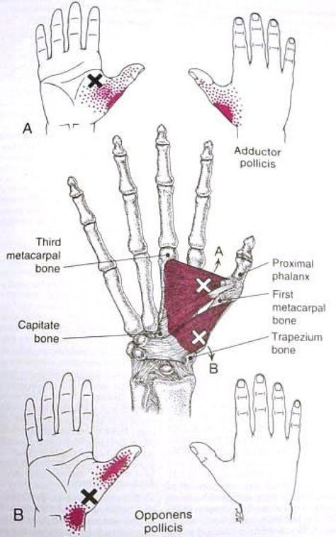 Carpal tunnel szindróma