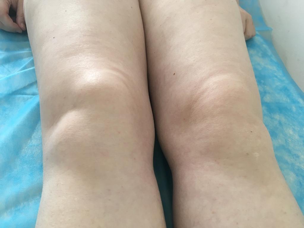 plazmakezelés artrózisos áttekintésekhez