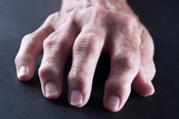 ízületi fájdalmak zsibbadása
