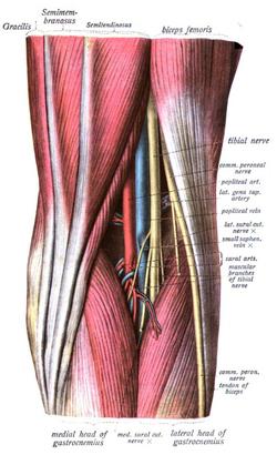poplitealis ligamentum-töréskezelés bokakötések törése