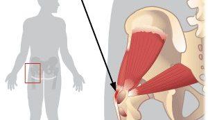 a csípőízület fáj és fájdalom az ujjak és a lábak ízületeiben