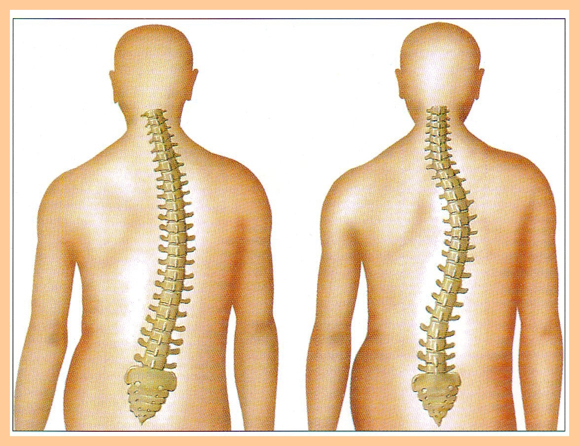 A gerinc leggyakoribb degeneratív betegségei - Súlypont Ízületklinika