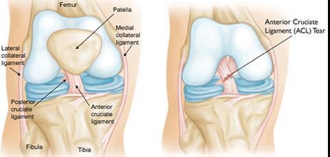 térdszalag-repedés tünetei és kezelése