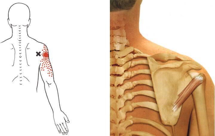 krónikus pielonephritis fájdalom az izmokban és az ízületekben