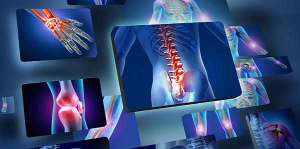 artrózis folyadék a térdízületben mi hiányzik az ízületi fájdalomtól
