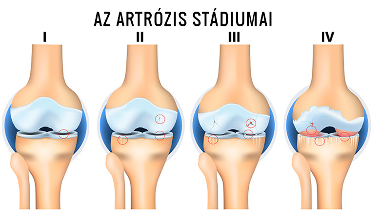fokos boka artrózis