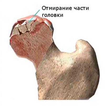 ízületi fájdalom korábban kis ízületek ízületi gyulladása és kezelése